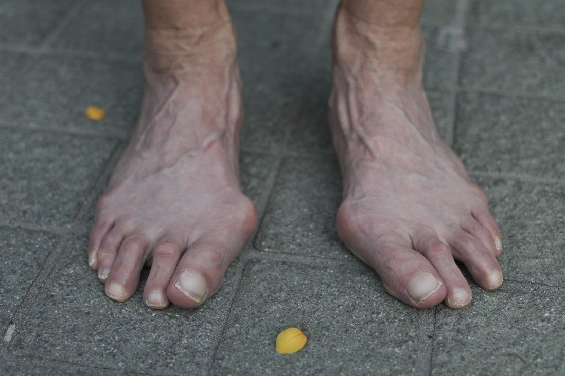 Effective Treatments for Painful Bunions