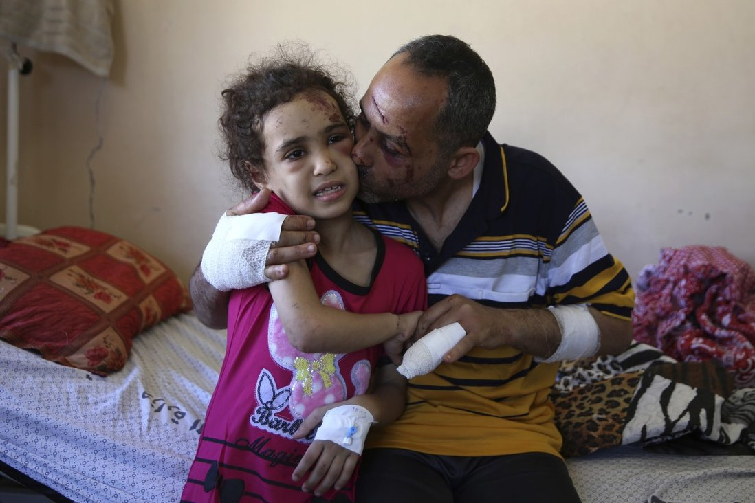Suzy survived an Israeli strike in Gaza. Dozens of other children haven't |  South China Morning Post