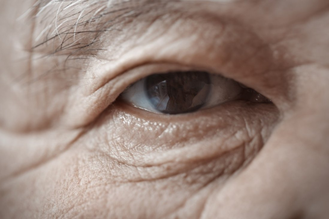 Age and chronic disease is currently responsible for vision loss in about 450 million people worldwide. Photo: Shutterstock